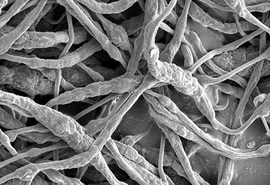 Ученые выдумали «огнетушители» для литиево-ионных батарей